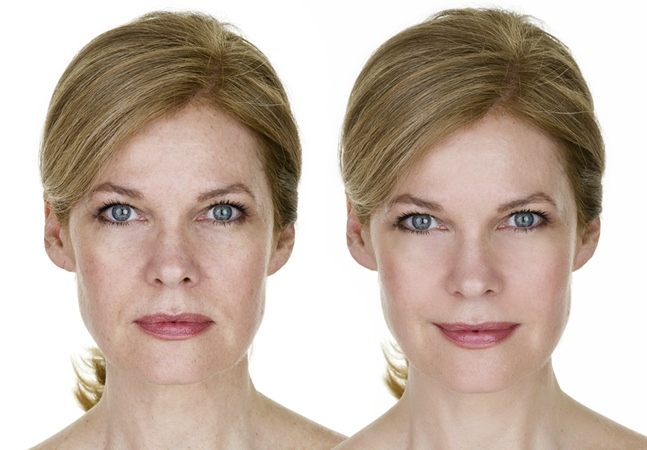 BOTOX Injections in Carlisle, Cumbria, from Rippon Medical Services