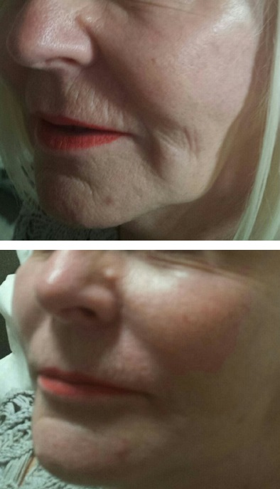 PDO Thread Lift and PRP Treatment Combined