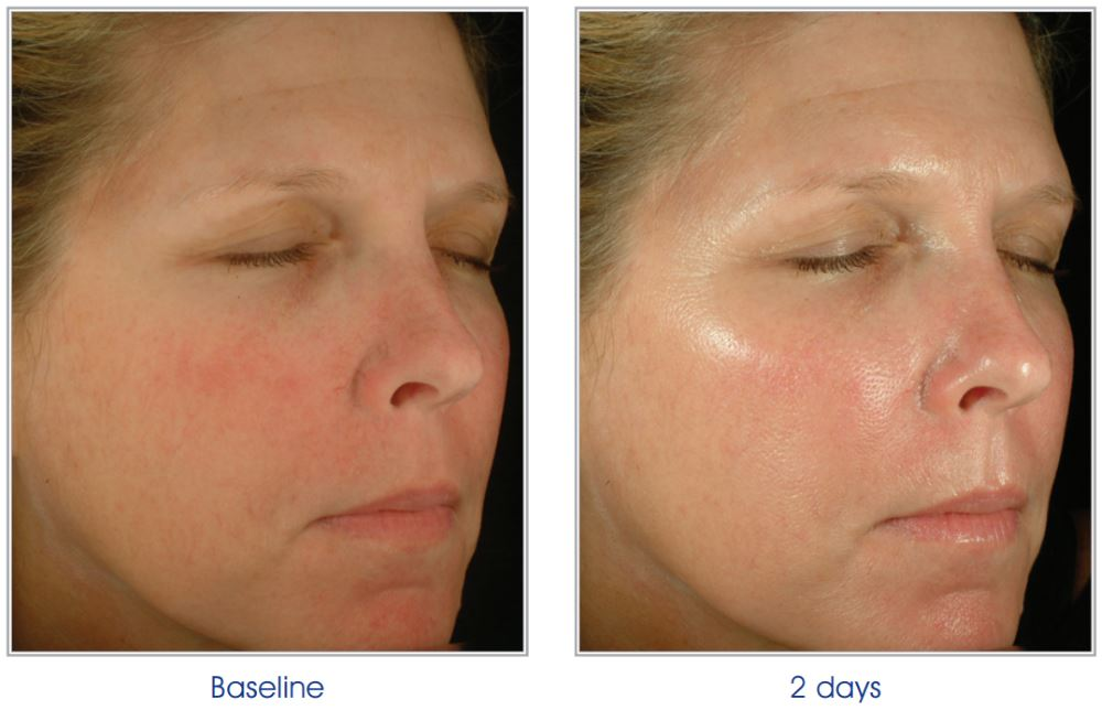 Obagi Blue Peel Before and After