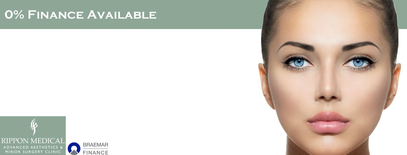 0% Finance on facial cosmetic treatments in Carlisle, Cumbria from Rippon Medical Services