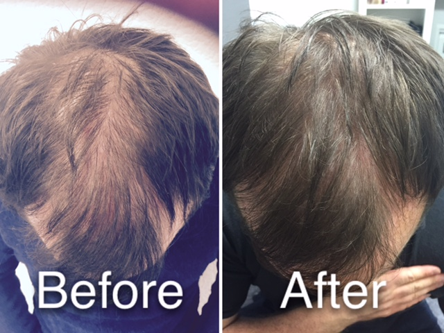 Platelet Rich Plasma Treatment for hair loss in Carlisle, Cumbria