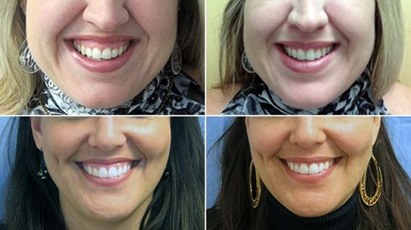 Gummy smile correction in Carlisle, Cumbria and the UK