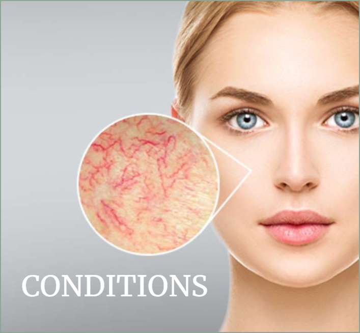 Body and Face Condition Treatments in Carlisle, Cumbria