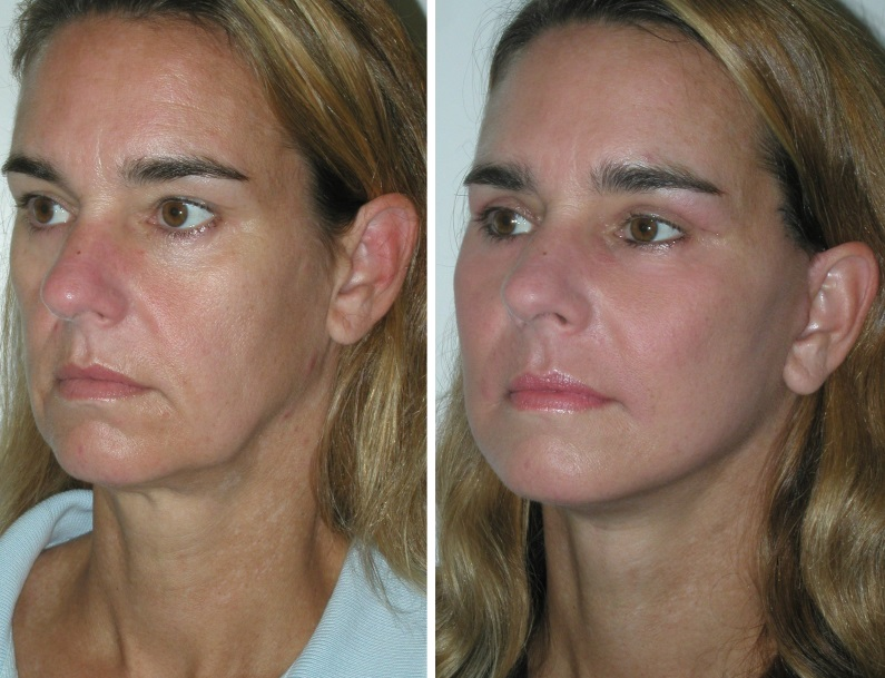 Thread Lifts - Rippon Medical Services - BOTOX Surgery in