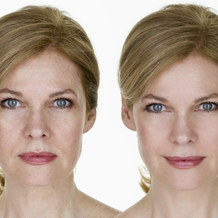 Wrinkle Reduction Injectables Treatment in Carlisle, Cumbria