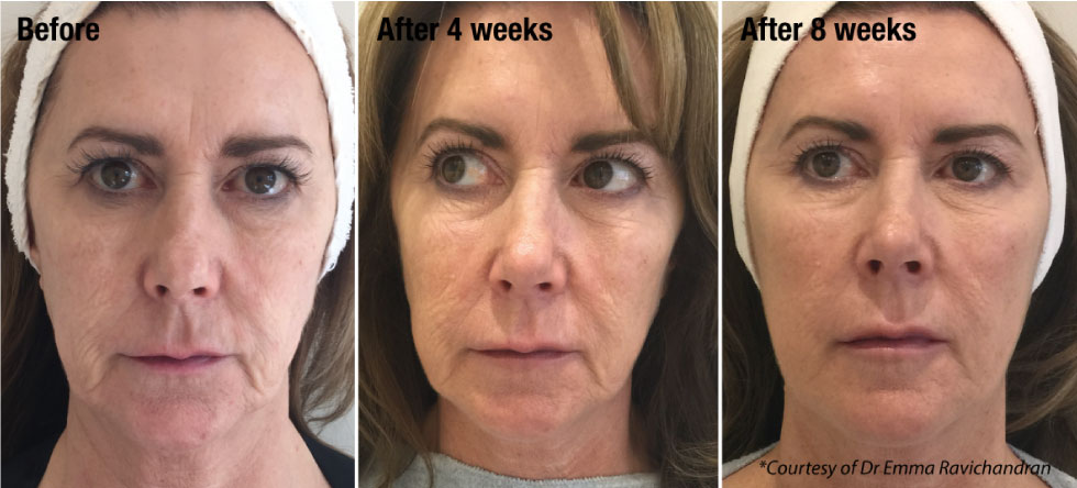 Profhilo Wrinkle Reduction Treatment in Carlisle, Cumbria